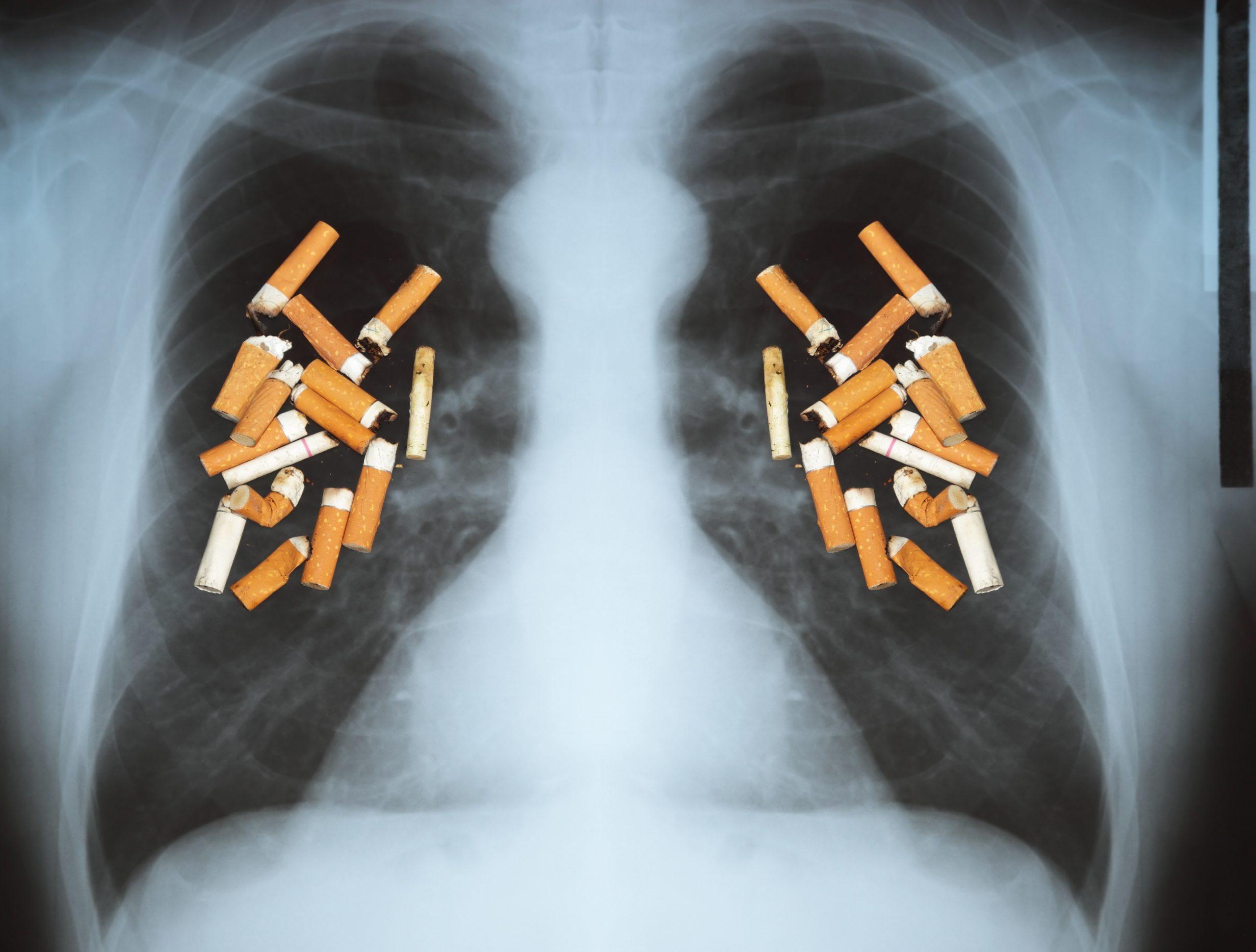 Gevolgen roken